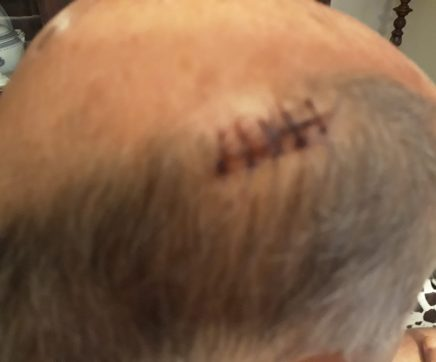 José Brilhante agredido num café da cidade