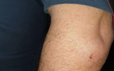 FOTOS | Homem ferido em briga nas bombas de gasolina no Cartaxo
